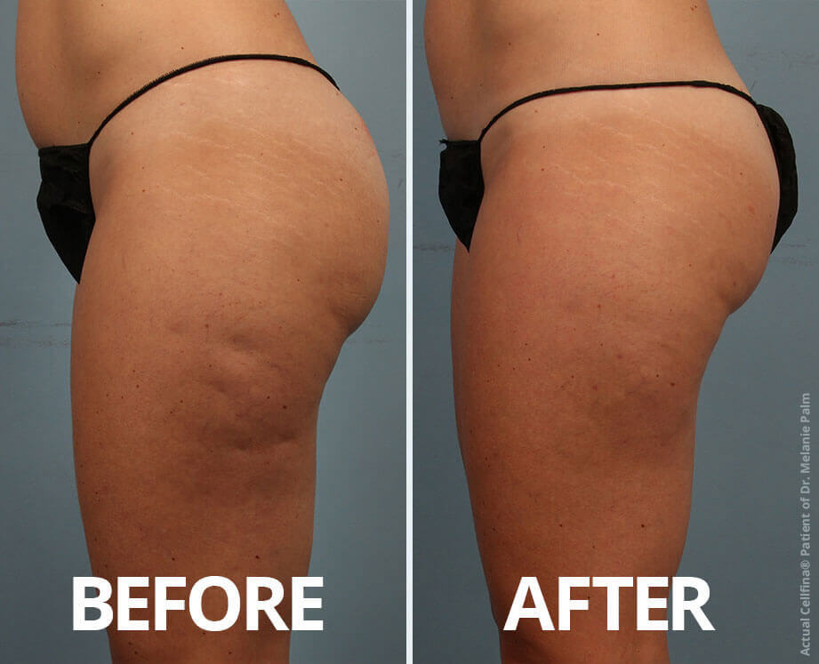 A before and after shot of Cellfina treatment on legs, thighs, and buttocks.
