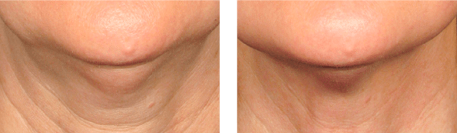 Ultherapy - Non-invasive Neck & Chin Lift