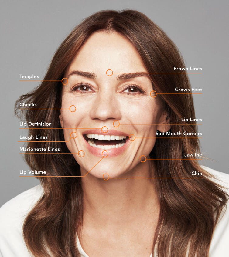 Image showing all the areas Belotero can treat on the face